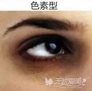 色素型的黑眼圈