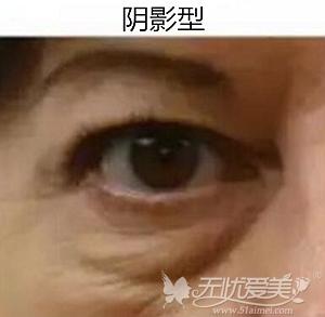 阴影型的黑眼圈