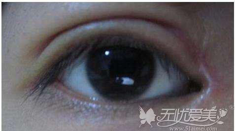 开眼角疤痕增生