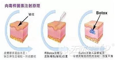 注射肉毒素瘦脸的原理