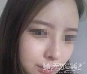 我在西安西京整形医院做自体脂肪填充+隆鼻手术后二个月