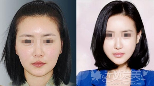 韩国KOREA整形医院面部脂肪填充案例