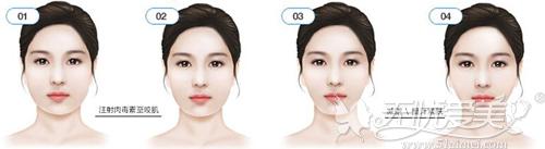 肉毒素瘦脸释放出下颌缘线