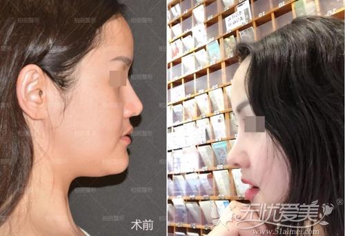 鼻修复术前术后对比