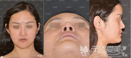 术前鼻假体歪斜外漏