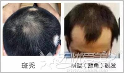 植发后还会掉发吗