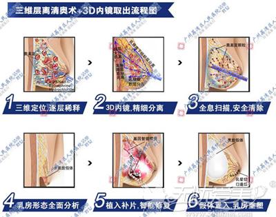 广州市荔湾区人民医院奥美定取出手术原理