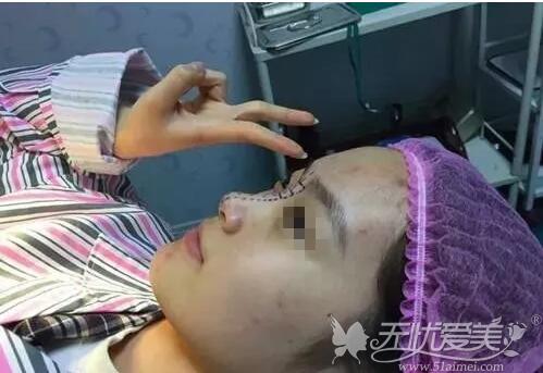 鼻部划线躺在手术台上的小文