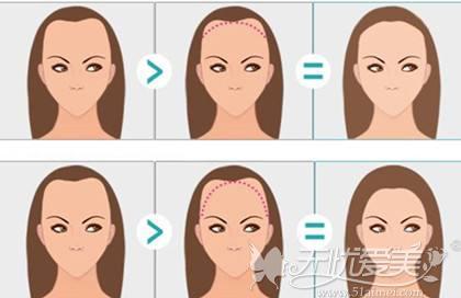 植发的过程