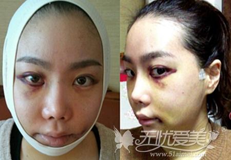 在韩国ID整形医院做了无捆绑双鄂手术后1周