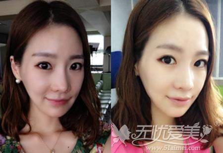 在韩国ID整形医院做了无捆绑双鄂手术后6个月