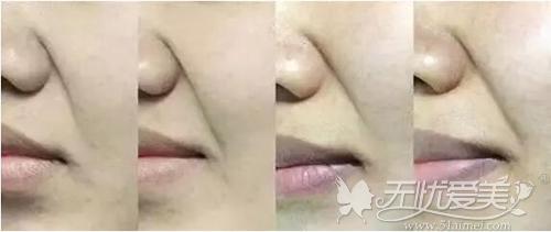 鼻唇沟纹非常的显老