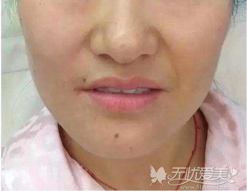 注射完一边鼻唇沟的效果