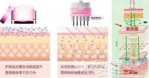 水光针皮肤补水原理