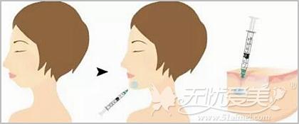 玻尿酸丰下巴