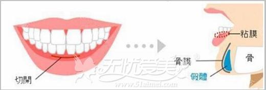 硅胶和膨体隆下巴