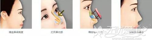自体软骨隆鼻手术原理