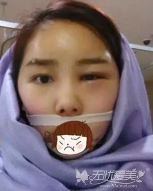 我在上海首尔丽格做面部轮廓+自体脂肪移植手术后第二天