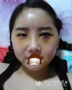 我在上海首尔丽格做面部轮廓+自体脂肪移植手术后第四天