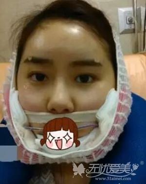 我在上海首尔丽格做面部轮廓+自体脂肪移植手术当天
