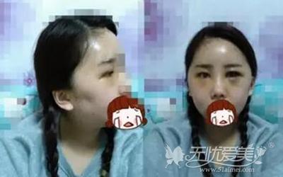 我在上海首尔丽格做面部轮廓+自体脂肪移植手术后第三天
