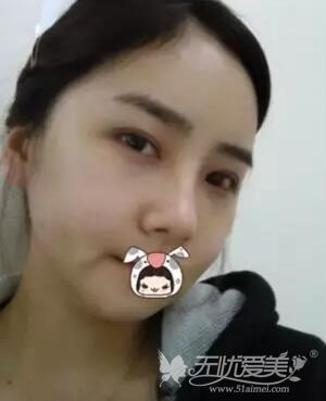 我在上海首尔丽格做面部轮廓+自体脂肪移植手术后两周