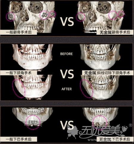 韩国无金属面部轮廓手术过程