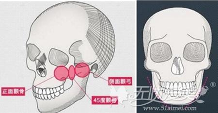 韩国无金属面部轮廓手术