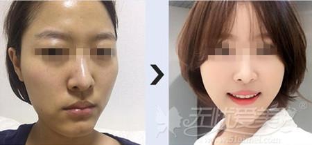 韩国无金属面部轮廓手术案例