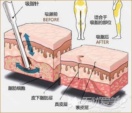 吸脂手术的原理和效果