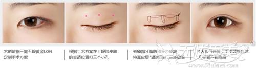 三点法双眼皮手术原理