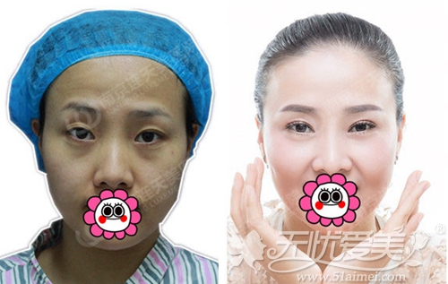 记录我在南京连天美做眼鼻综合手术前后对比照片