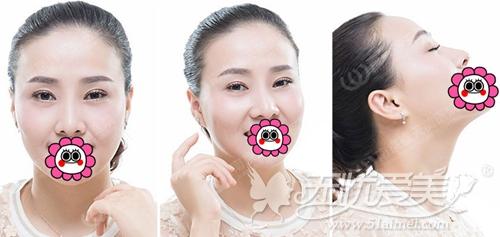 记录我在南京连天美做眼鼻综合手术后照片