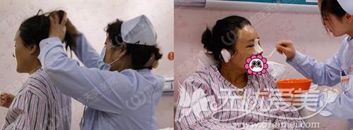 记录我在南京连天美做眼鼻综合手术后护理