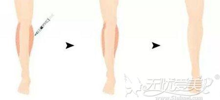 瘦腿针注射原理