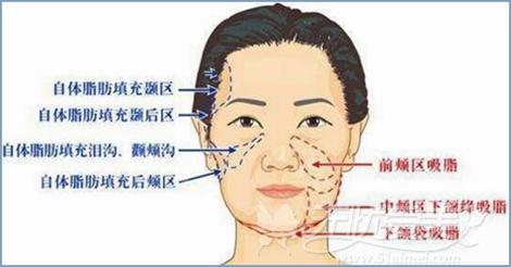 自体脂肪面部填充区域