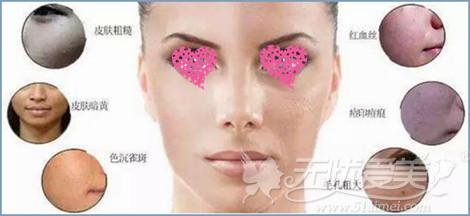 光子嫩肤改善肤质