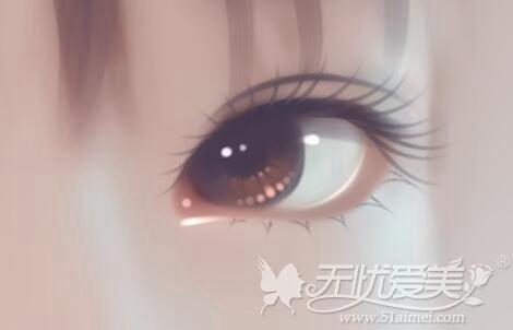 眼综合手术