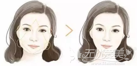 瘦脸针+玻尿酸丰太阳穴改善菱形脸