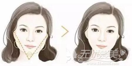 瘦脸针+玻尿酸丰下巴可以改善方形脸