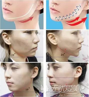 面部埋线提升效果