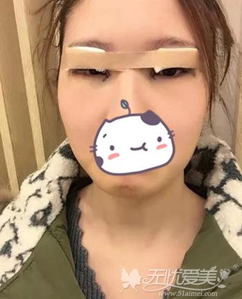 在大庆刑立辉做双眼皮手术当天