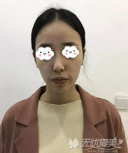 隆鼻术前样貌