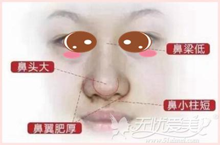 需要做鼻综合手术的情况