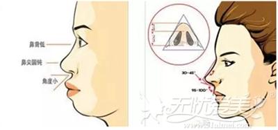 不好看的鼻部形状