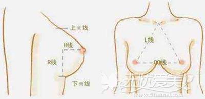 隆胸手术后护理