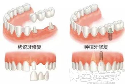 镶牙和种植牙