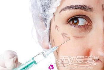 注射方法去除黑眼圈