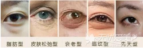 不同类型的眼袋