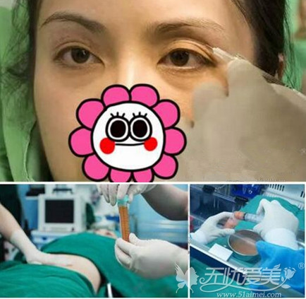自体脂肪填充眼窝凹陷方法